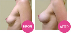 breastfast - augmentation mammaire
