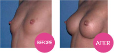 breast enlargement without surgery